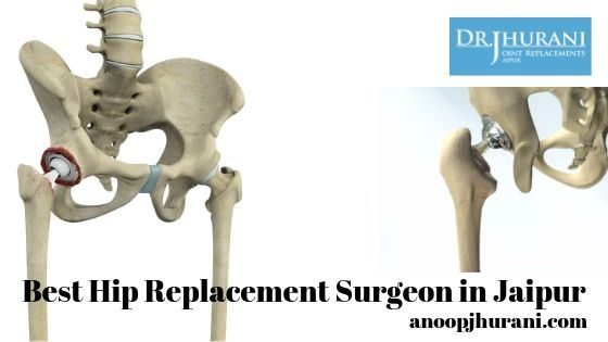 Partial Knee Hip Replacement Doctor/surgeon in Jaipur Dr